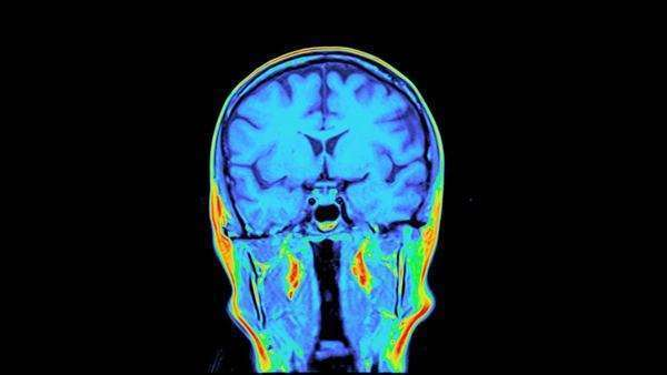 Coloured coronal MRI scans of a normal healthy brain. Rights-managed stock video