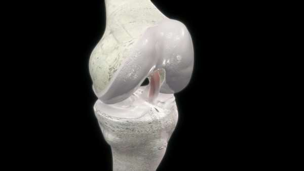 Arthritic knee joint, animation Royalty-free stock video
