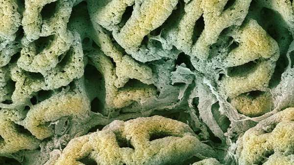 Stomach lining. Coloured scanning electron micrograph (SEM) Royalty-free stock video