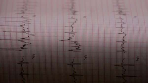 Electrocardiogram exam Royalty-free stock video