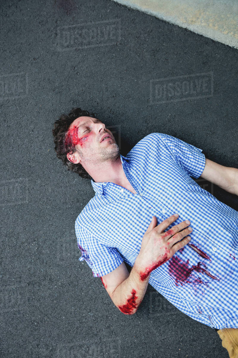 Injured man lying on the ground after accident stock photo