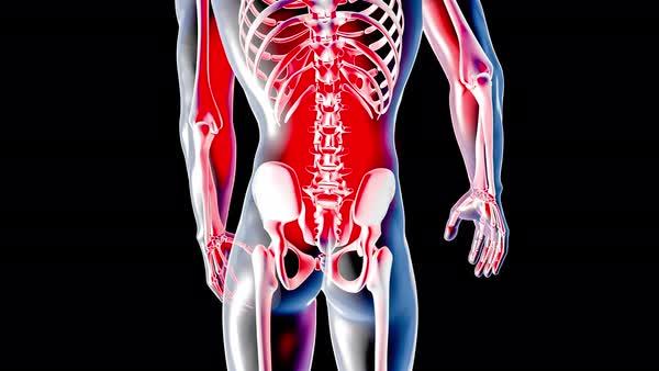 Anatomy visualization - Back Pain - Stock Video Footage - Dissolve
