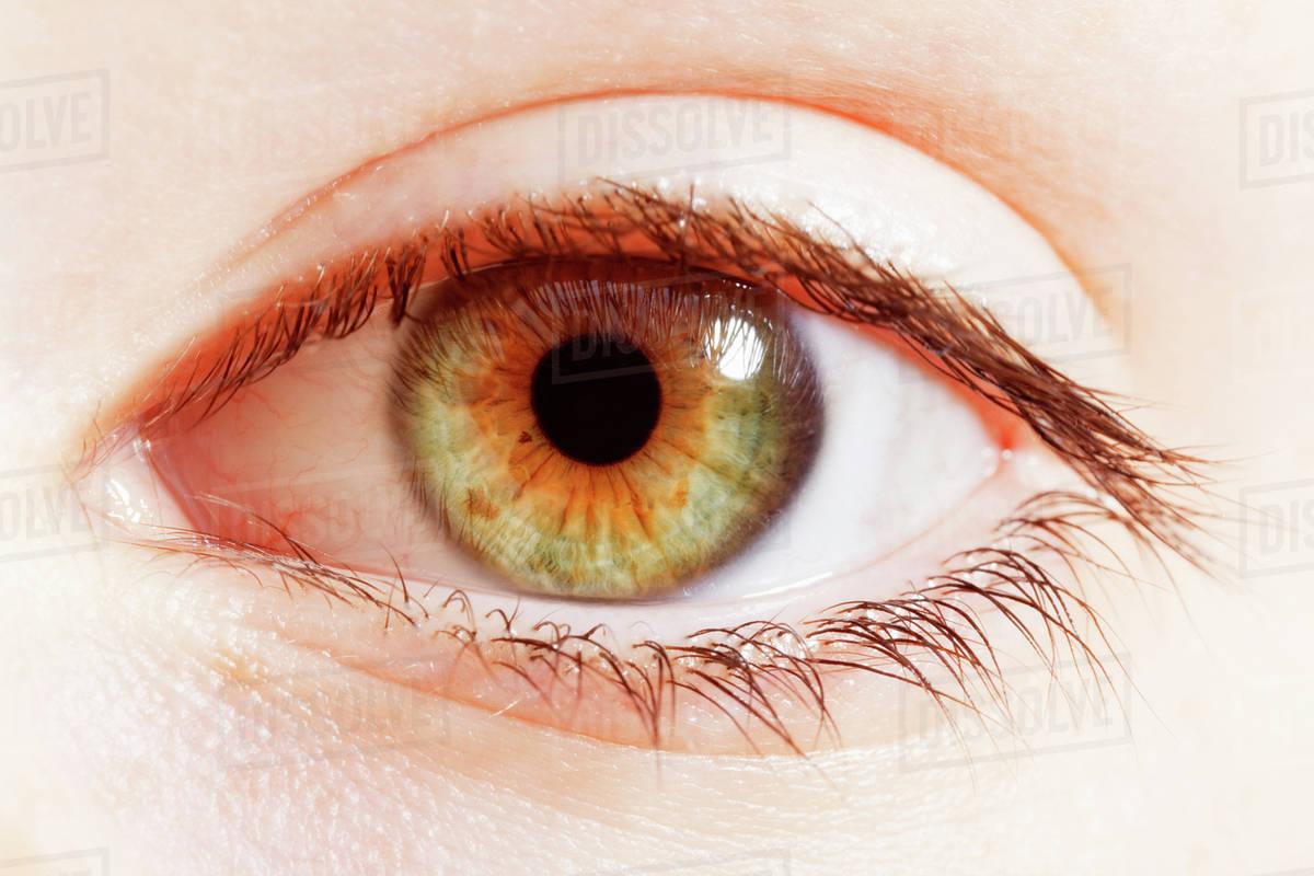 Mengenali 6 Jenis Warna Mata Yang Langka Dan Unik